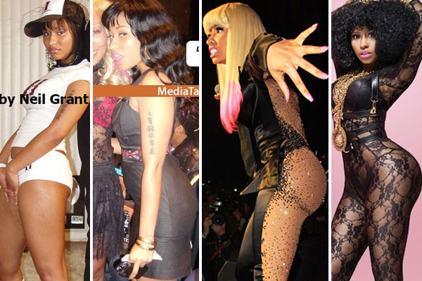 niki_minaj_plastic-surgery-before-and-after-photos